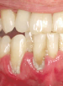 Periodontitis apical crónica