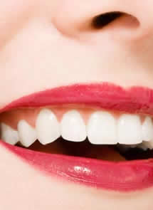 Coste del Blanqueamiento Dental