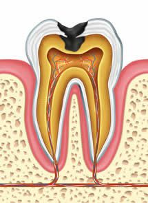 Pulpitis reversible e irreversible